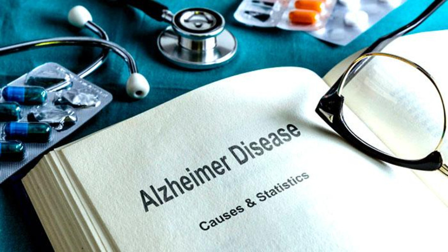 Cannabis and Alzheimers: The Effects of Medical Cannabis on Alzheimers Treatment 1